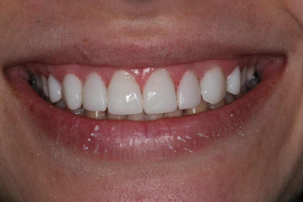 teeth bonding before and after cosmetic dentist veneers veneer
