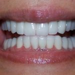 After Full Mouth Porcelain Crowns