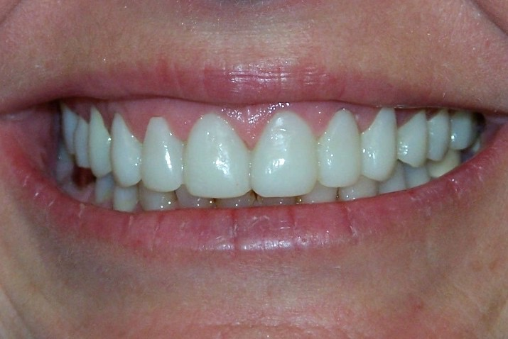 crowns teeth whitening cosmetic dentist lake forest newport beach dental teeth bonding