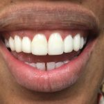 After Teeth Cosmetic Bonding
