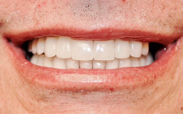 cosmetic dentist veneers dental implants no more dentures implants allon4 mouth teeth whitening teeth bleaching