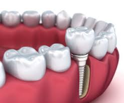 dental implant no more dentures implant dentist