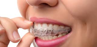 invisalign clear braces invisible braces cosmetic dentist