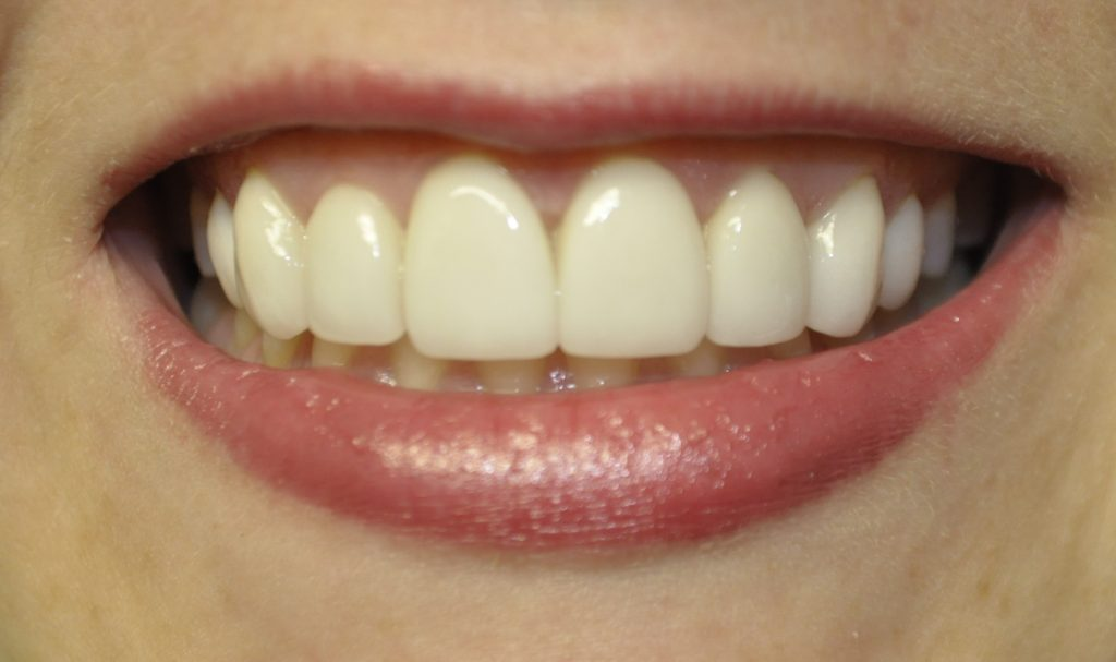 veneer-smile-tooth-after-procedure
