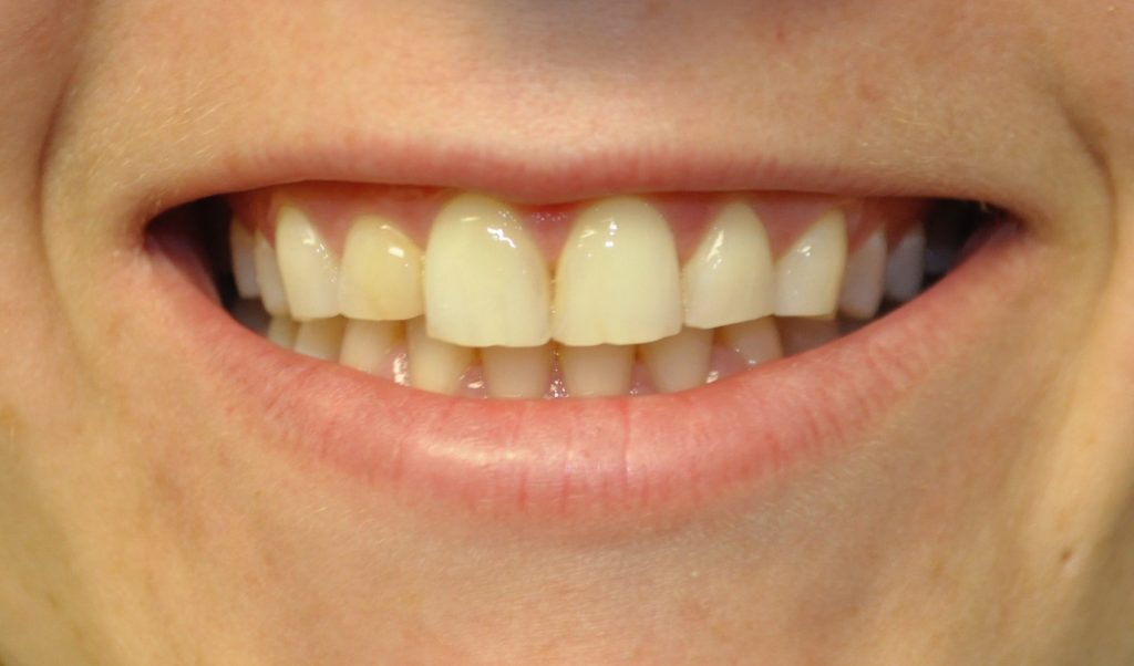 chipped tooth veneer