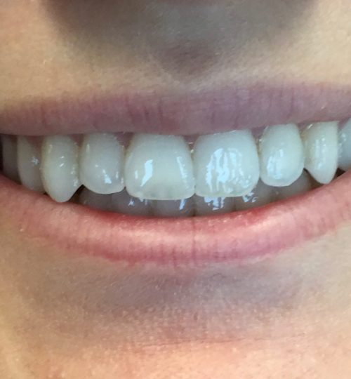 Before Teeth Bonding Cosmetic
