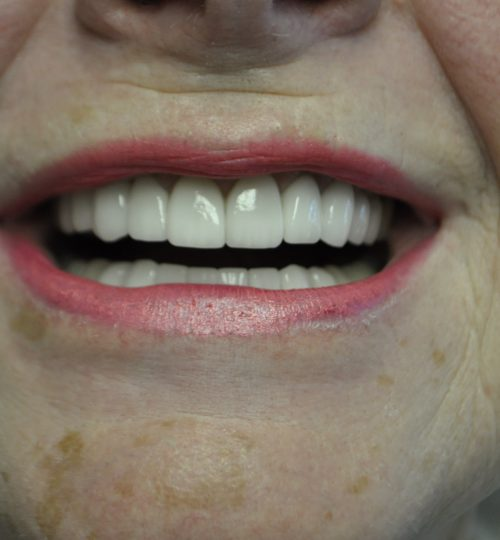 cosmetic crowns - cosmetic veneers